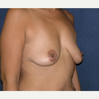 35-44 year old woman treated with Breast Implants before 3455636