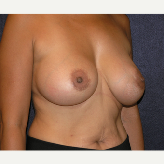35-44 year old woman treated with Breast Implants after 3455636
