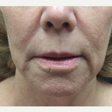 55-64 year old woman treated with Facelift before 3769120