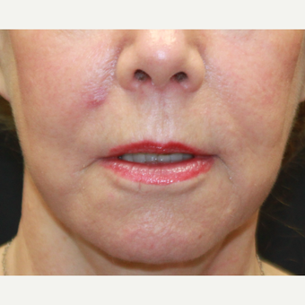 55-64 year old woman treated with Facelift after 3769120