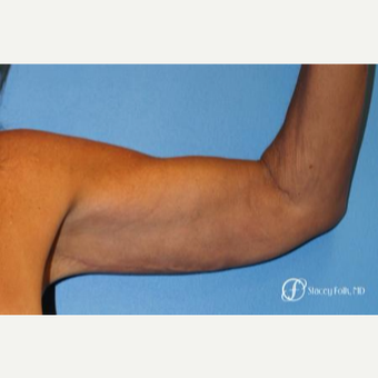 55-64 year old woman treated with Arm Lift after 3240434