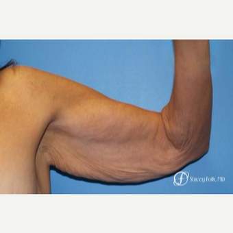 55-64 year old woman treated with Arm Lift before 3240434