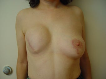 Breast reconstruction before 1514800