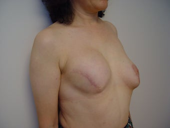 Breast reconstruction 1514800