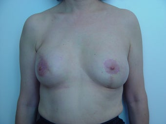 Breast reconstruction after 1514800