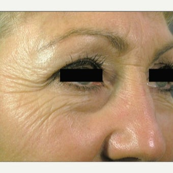 45-54 year old woman treated with Laser Resurfacing before 1973257