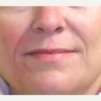 45-54 year old woman treated with Restylane before 3372372