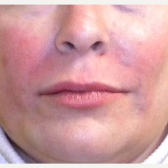 45-54 year old woman treated with Restylane after 3372372