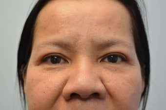 55 Year Old Female Treated for Droopy Eyelids after 1138000