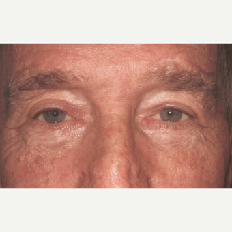 Eyelid Surgery (Blepharoplasty) after 3831508