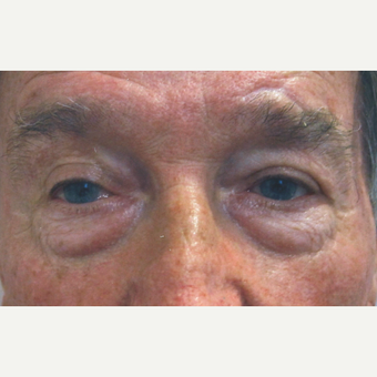 Eyelid Surgery (Blepharoplasty) before 3831508