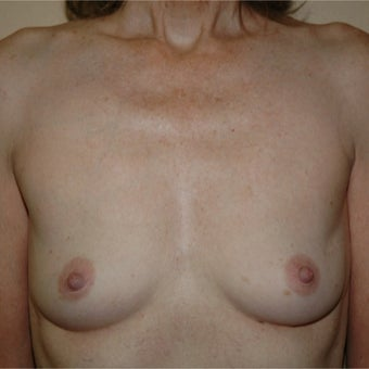 51 year old woman treated with Breast Augmentation before 1981370