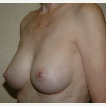 51 year old woman treated with Breast Augmentation 1981370
