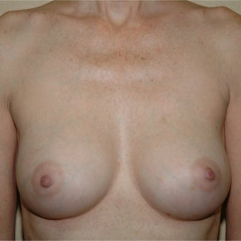 51 year old woman treated with Breast Augmentation after 1981370