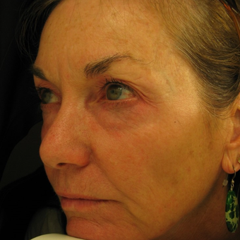 55-64 year old woman treated with Eye Bags Treatment before 3441395