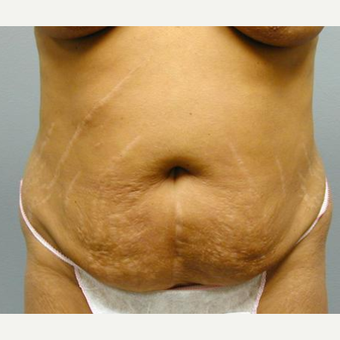 Tummy Tuck before 3241411