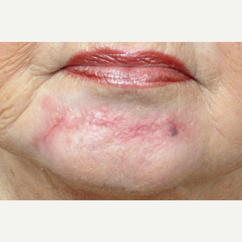 65-74 year old woman treated with Scar Removal before 3696808