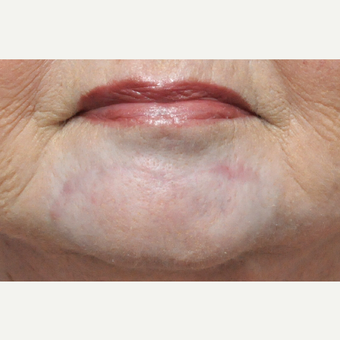 65-74 year old woman treated with Scar Removal after 3696808