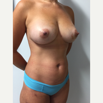 30 year old woman treated with Breast Fat Transfer (450cc each breast) after 3133884