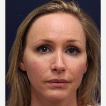 25-34 year old woman treated with Bellafill before 3143390