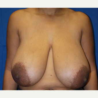 45-54 year old woman treated with Breast Reduction before 2987222