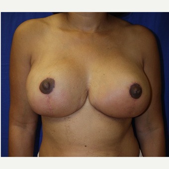 45-54 year old woman treated with Breast Reduction after 2987222