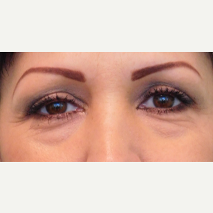 46 year old woman treated with Eye Bags Treatment/Lower Eyelid Lift before 3059953