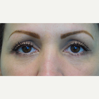 46 year old woman treated with Eye Bags Treatment/Lower Eyelid Lift after 3059953