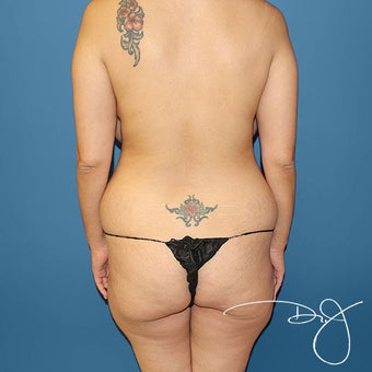 Brazilian Buttock Augmentation This patient had multiple target areas of liposuction and liposculpting to achieve a perky, full and youthful
