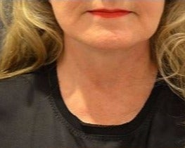 55-64 year old woman treated with Neck Lift after 3482884