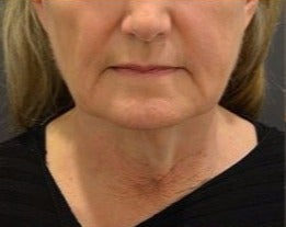 55-64 year old woman treated with Neck Lift before 3482884