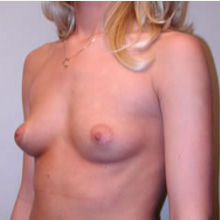 Breast Augmentation before 3680706