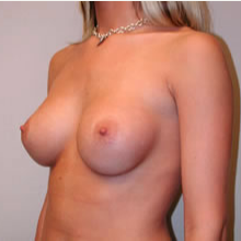 Breast Augmentation after 3680706