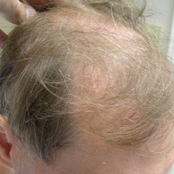 45 year old man treated with FUE Hair Transplant before 3724501