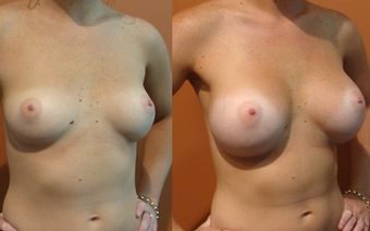 Breast Implants before 975860