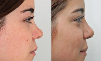 Rhinoplasty before 225883