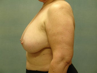 Breast Reconstruction before 221551
