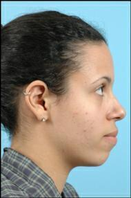Rhinoplasty / Chin Implant before 324195