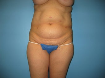 tummy tuck with liposuction before 496508