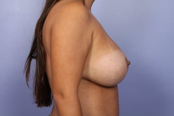 Breast Implant Revision after 622844