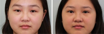 Double Eyelid (Asian Blepharoplasty) Incisional before 596682