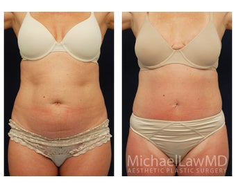 Tummy Tuck with Liposuction before 391629