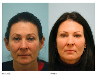 Fat Transfer and Facial Rejuvenation before 136356