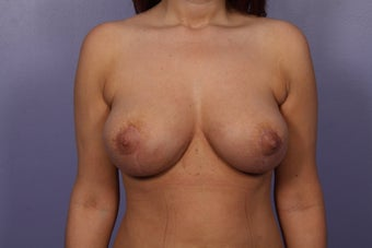 Explant of breast implants after 526806