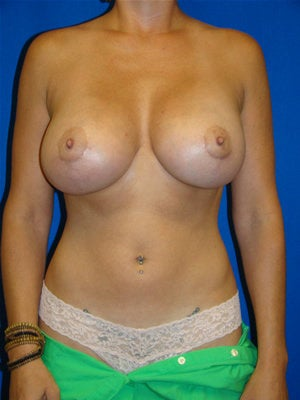 Breast Augmentation Revision after 85730