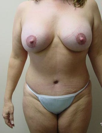 Breast Lift/Augmentation/Tummy Tuck after 318570