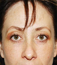 blepharoplasty (eyelids) after 219357