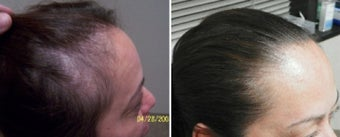 Female medical treatment for hair loss (no surgery) before 369183