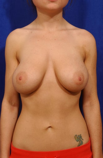 Breast augmentation with 330cc smooth saline implants, subpectoral placement, inframammary incision after 84543