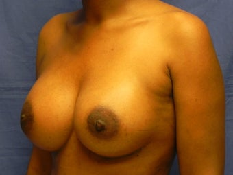 Breast Augmentation  after 364626